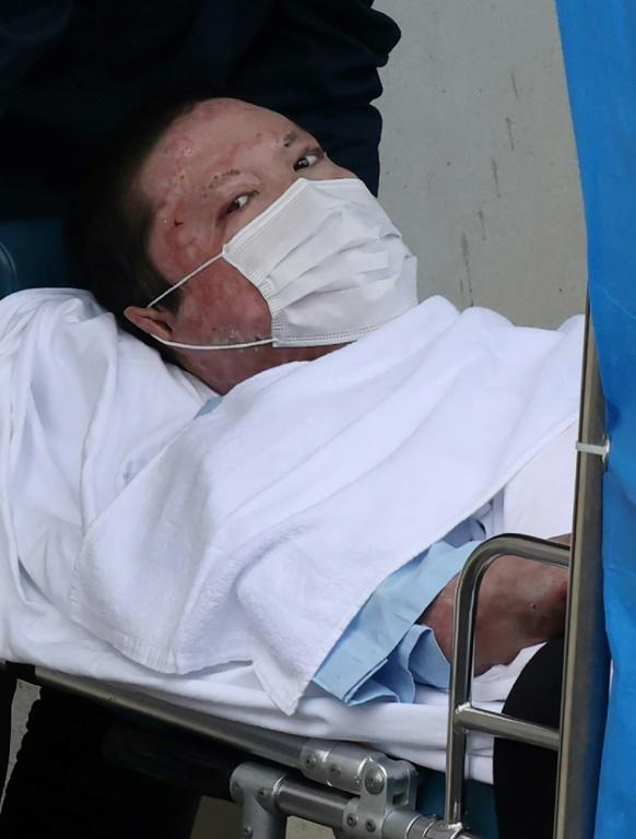 Shinji Aoba, pictured here in May, nearly died of the injuries he sustained in the attack, said a doctor who treated him