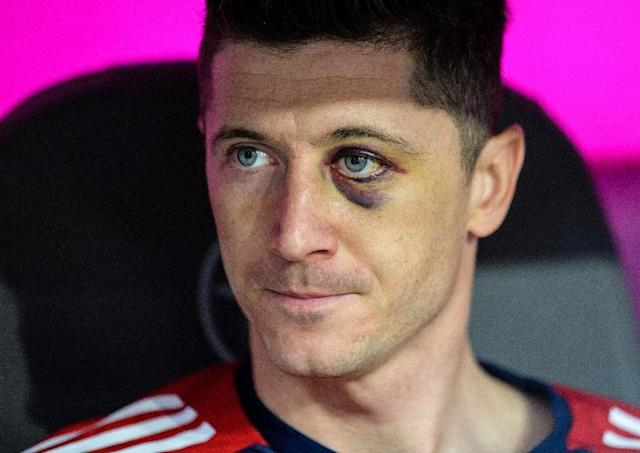 Eye on the game: Bayern Munich forward Robert Lewandowski sits on the bench sporting a black eye during the Bundesliga match against Borussia Moenchengladbach on Saturday (AFP Photo/Matthias Balk)