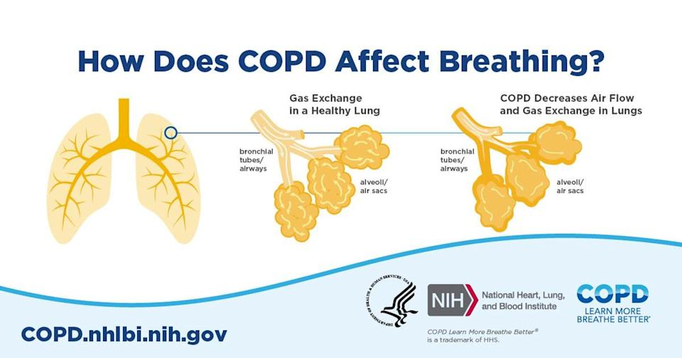 """<span class=""""attribution""""><a class=""""link rapid-noclick-resp"""" href=""""https://www.nhlbi.nih.gov/health-topics/education-and-awareness/copd-learn-more-breathe-better"""" rel=""""nofollow noopener"""" target=""""_blank"""" data-ylk=""""slk:National Heart, Lung and Blood Institute"""">National Heart, Lung and Blood Institute</a></span>"""
