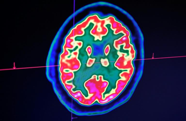 A picture of a human brain taken by a positron emission tomography scanner