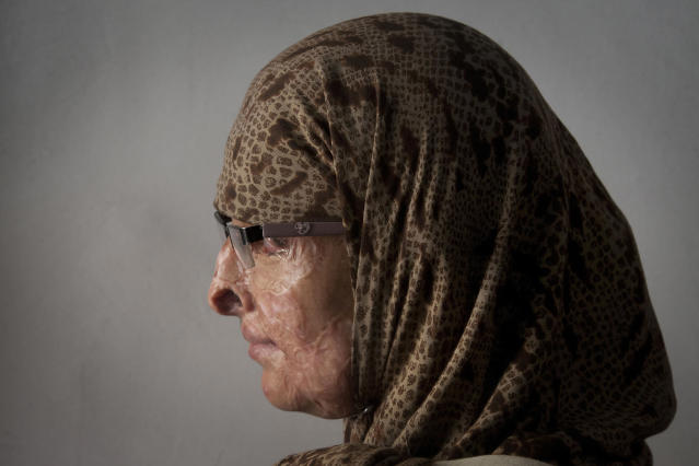 <p>Ruqayya Parveen, a 26-year-old Pakistani woman, poses for a photograph in Karachi, Pakistan. Parveen's husband dumped a jug of acid on her and her children when they were sleeping, March 6, 2015. She said many in her community shun her, not only because of her appearance, but because they also assumed she did something to violate her family's honor that must have provoked the attack. Pakistan is celebrating International Woman's Day. (AP Photo/Shakil Adil) </p>