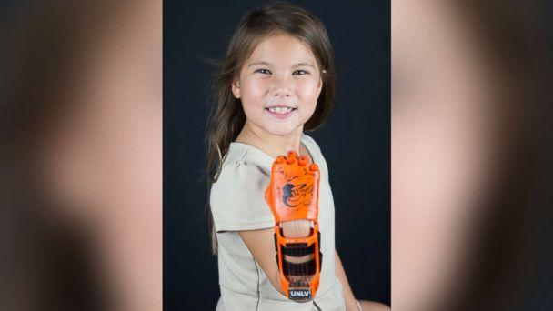 PHOTO: Hailey Dawson, a 7-year-old from Nevada, has thrown the first pitch with her 3-D printed hand for two major league baseball teams and hopes to reach her goal of 28 more. (Yong Dawson)