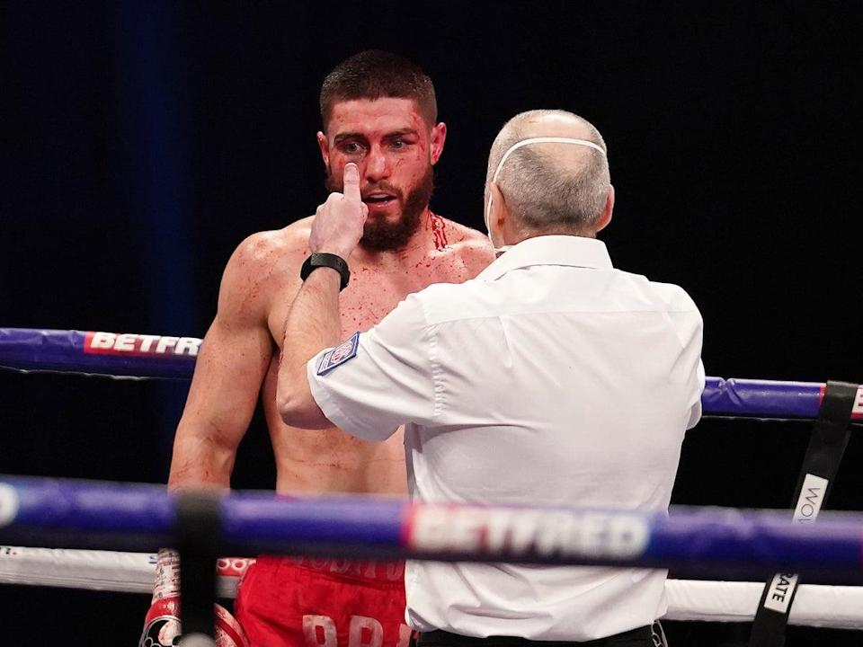 Josh Kelly receives a countDave Thompson Matchroom Boxing