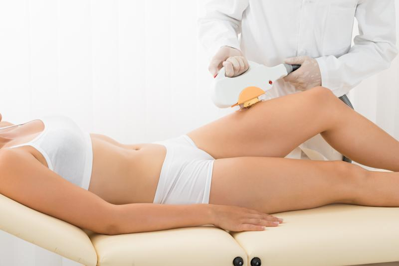 Laser hair removal can be a costly but effective way to get rid of the unwanted hair people are sick of shaving, trimming or waxing.