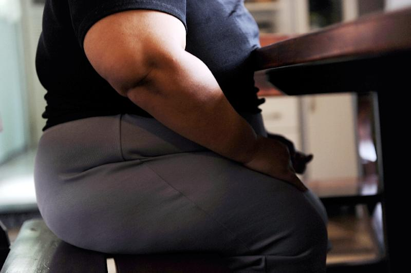 "A patient is classified as being ""severe obese"" if they have a body-mass index (BMI) of 40+ (AFP Photo/VANDERLEI ALMEIDA)"