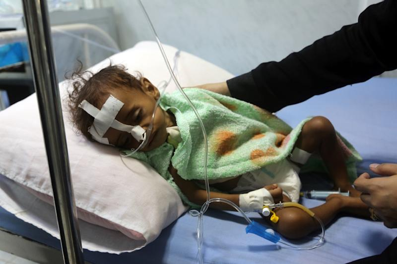 Some 8.4 million Yemenis are at risk of famine as the war between rebels and the Saudi-backed government nears its fourth year, the United Nations says (AFP Photo/ABDO HYDER)