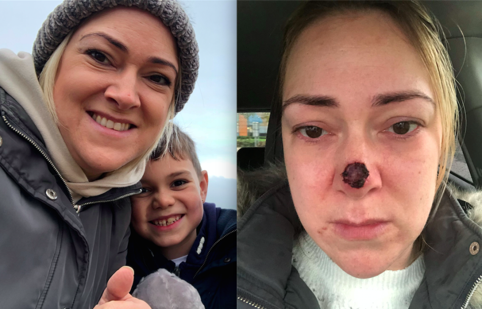 A mum was shocked to discover the spot on the end of her nose was skin cancer [Photo: SWNS]