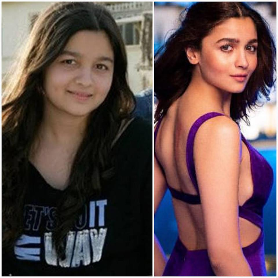 Won't say she was, 'fat'. Rather, as a teenager, Alia retained the baby fat most Indian women tend to have and personally, I think she looked aww-so-cute with those few extra pounds. However, the industry has its own standards and to fit into it, the chubby youngster hit the gym and came out perfectly chiseled to sizzle the silver screen.
