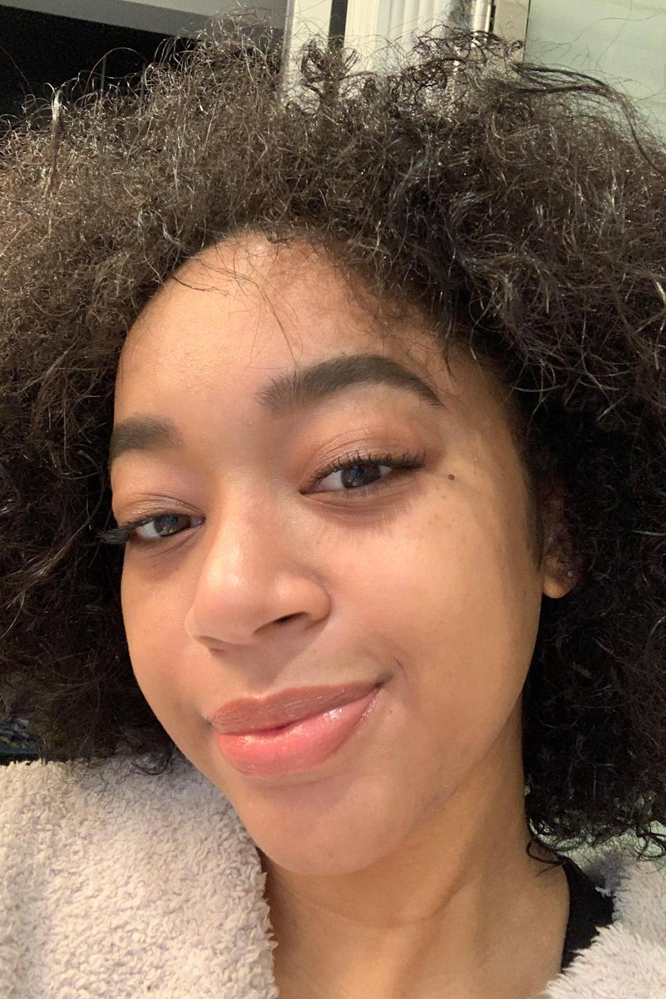 """<h2>Day 5: Peeling</h2><br>By day five, I felt like myself but <em>much </em>drier. My shedding had almost wholly subsided, but there was nothing I wanted more than to layer on a hydrating sheet mask. While my skin did feel parched, I was relieved not to wake up to large patches of skin flaking off my face. I continued with the PCA post-care regimen and layered on some of my go-to Supergoop sunscreen before heading outdoors for extra hydration and protection. <br><br>If you haven't been<a href=""""https://www.refinery29.com/en-us/best-face-sunscreen"""" rel=""""nofollow noopener"""" target=""""_blank"""" data-ylk=""""slk:diligent with sun care"""" class=""""link rapid-noclick-resp""""> diligent with sun care </a>before a chemical peel, don't plan on slacking after one: It's the single most crucial step to protecting your skin, especially while it's vulnerable. """"Sunscreen is an absolute non-negotiable,"""" Dr. Chilukuri says. Skipping out on sunscreen could lead to burning or worsening discoloration, which you can easily avoid by shielding your skin from the sun."""