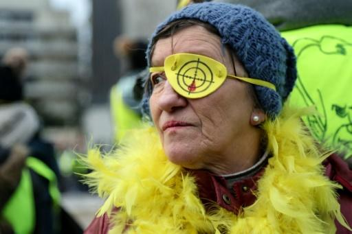 Some protesters wore fake eye patches to protest against the weapons used by riot police which they say have caused serious injuries to some demonstrators