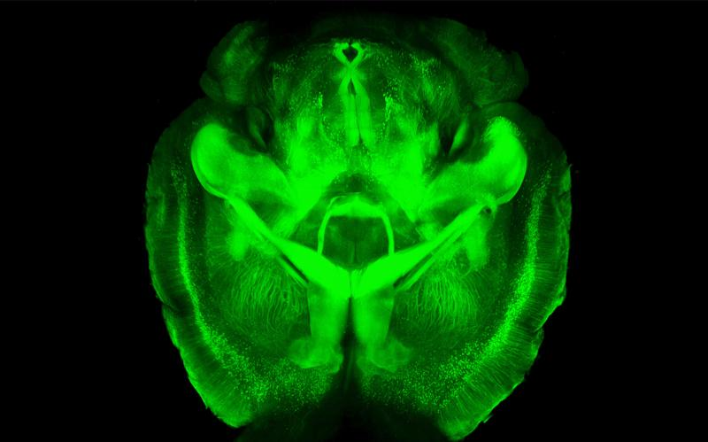 """This undated image provided by Karl Deisseroth's lab shows a three-dimensional rendering of clarified mouse brain seen from below. Scientists have made mouse brains transparent, permitting a comprehensive and exquisitely detailed view of their inner structures, providing a major new tool for research. """"You get the big picture without losing track of the details,'' said Dr. Karl Deisseroth, who led the Stanford team that reported the work online Wednesday, April 10, 2013 in the journal Nature. Some other labs are already working to apply the technique on other kinds of tissue, such as for studying breast cancer biopsies, Deisseroth said. (AP Photo/Karl Deisseroth)"""
