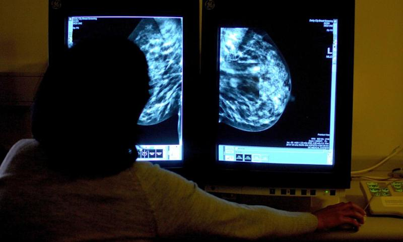 A woman studies a mammogram
