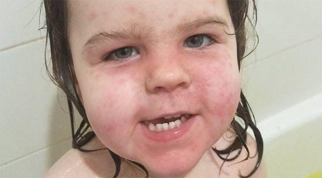 Two-year-old Kaylee was left with rashes on her face. Source: Facebook