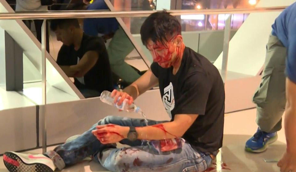 Ryan Lau is seen bleeding on the floor of Yuen Long MTR station after being caught in a mob attack there on July 21, 2019. Photo: AFP