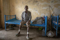 "Guesh Tesla, 54-year-old carpenter and Tigrayan survivor from Rawyan, Ethiopia, shows wounds from sticks on his legs, inside a shelter, at the Hamdeyat Transition Center near the Sudan-Ethiopia border, eastern Sudan, Tuesday, Dec. 15, 2020. Tesla said he was taken to a courthouse that had been turned into a ""slaughterhouse"" by militia from the neighboring Amhara region. He said he heard the screams of men being killed, and managed to escape by crawling away at night. ""I would never go back,"" Guesh said. (AP Photo/Nariman El-Mofty)"