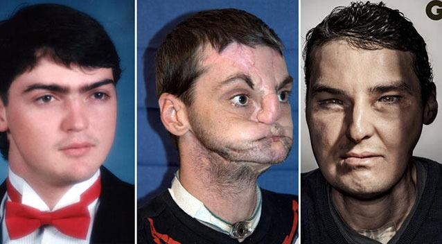 Man with face transplant models for GQ