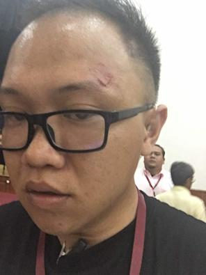 Daniel Low sustained facial injuries in his attempt to protect attendees from assailants. — Photo courtesy of DAP