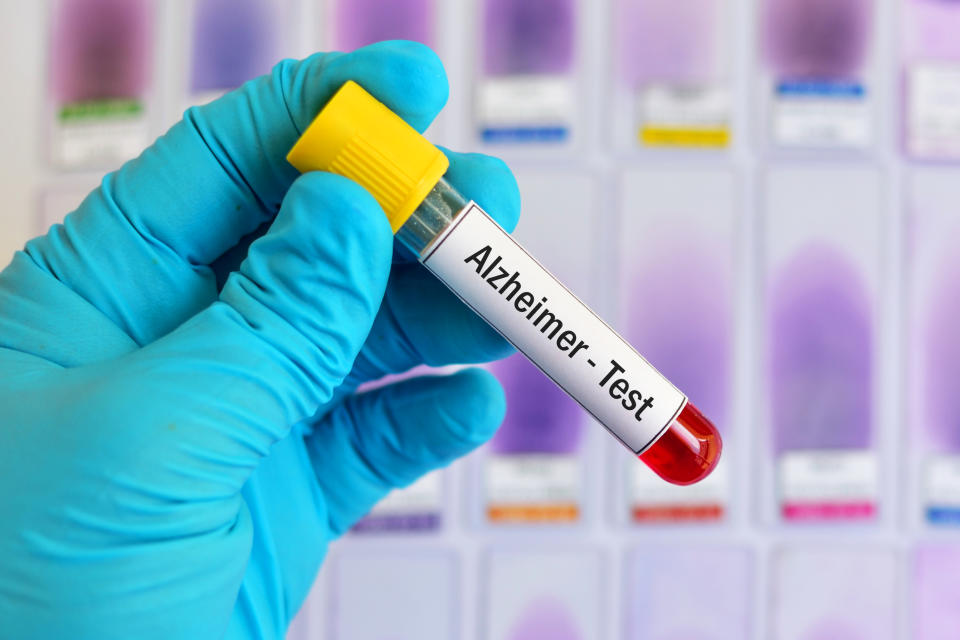 Test tube with blood sample for Alzheimer disease test