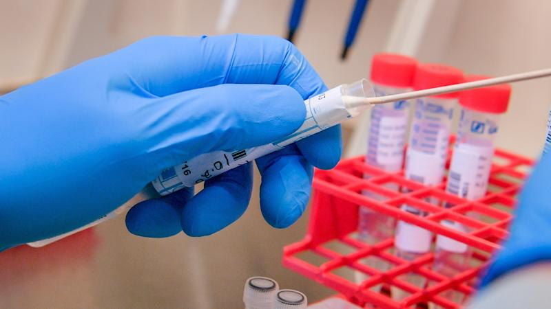 Covid-19 antibody test 'at least a month away'