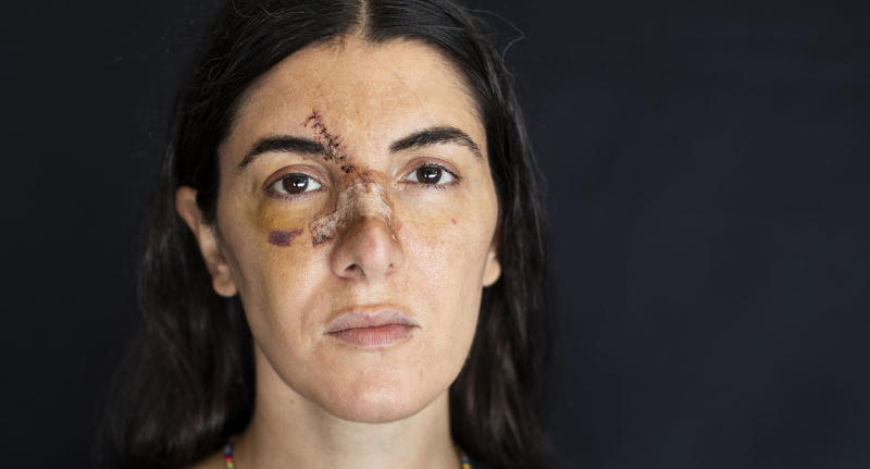 Angelique Sabounjian, who got injured at her office during the Aug. 4 explosion that killed more than 170 people, injured thousands and caused widespread destruction, poses for a photograph in Beirut, Lebanon, Friday, Aug. 14, 2020. (AP Photo/Hassan Ammar)