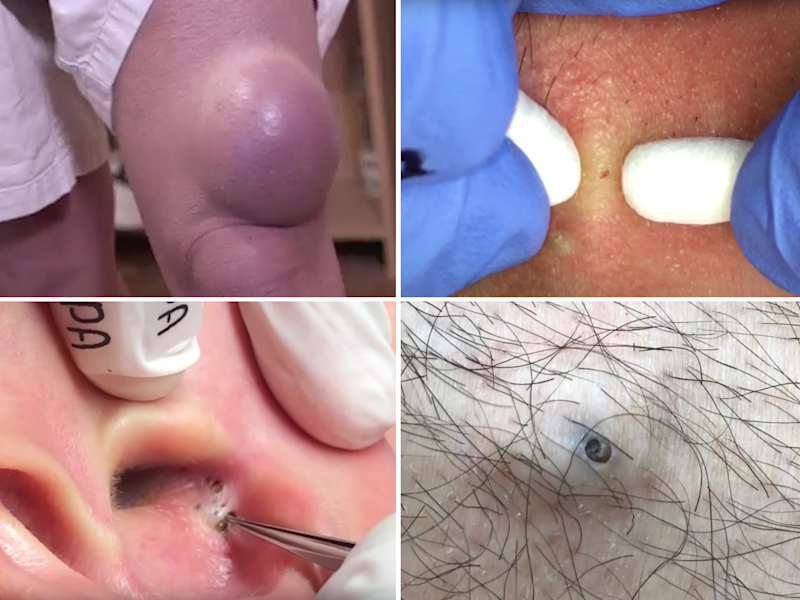 These are the best pimple popping videos of 2018 — so far