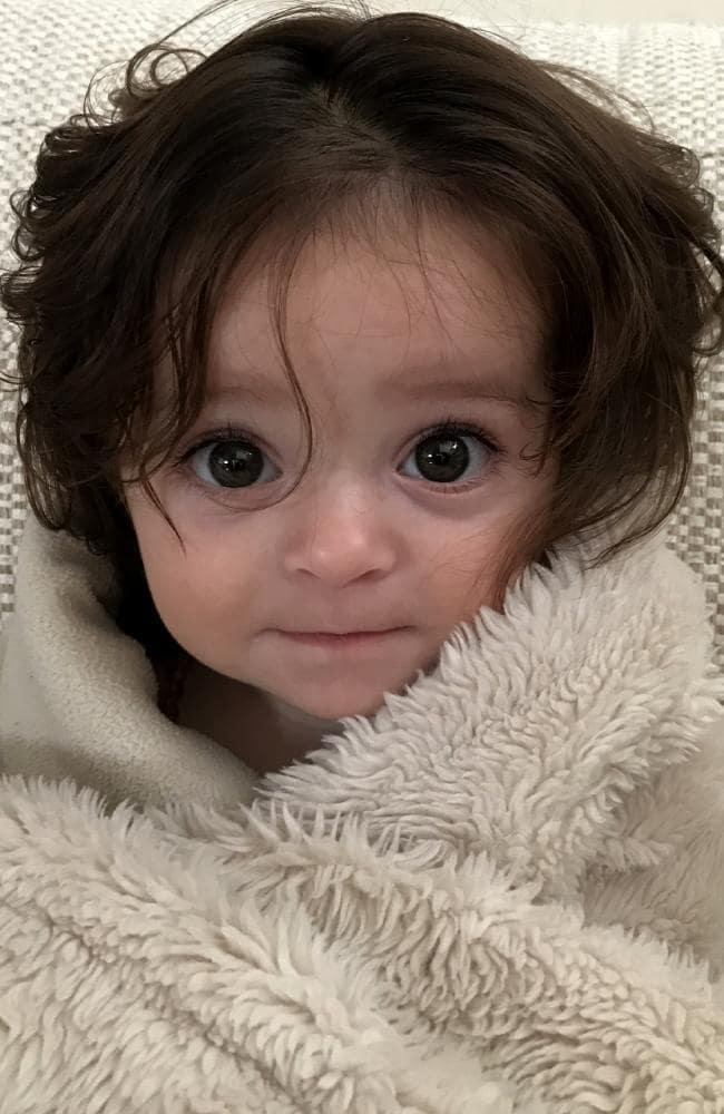 Alexis Bartlett was born with so much hair, it was visible on an ultrasound. Image via News.com.au.