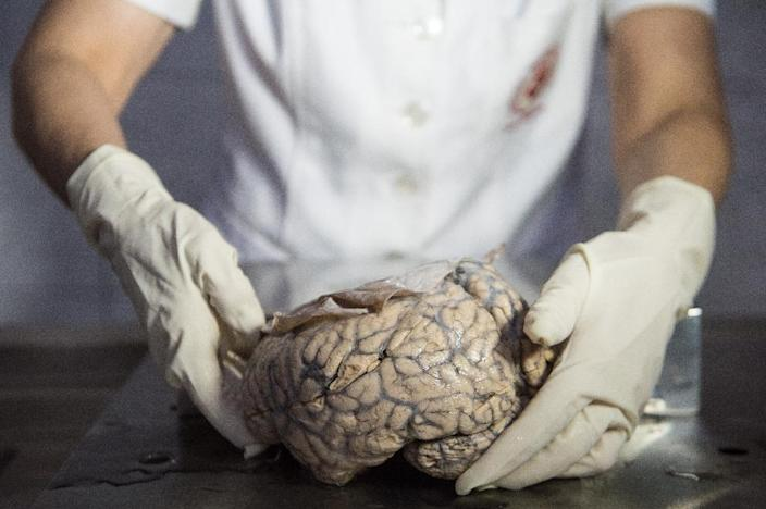 """Dr Diana Rivas displays a human brain on a working surface at the """"Museum of Neuropathology"""" in Lima, Peru (AFP Photo/ERNESTO BENAVIDES)"""