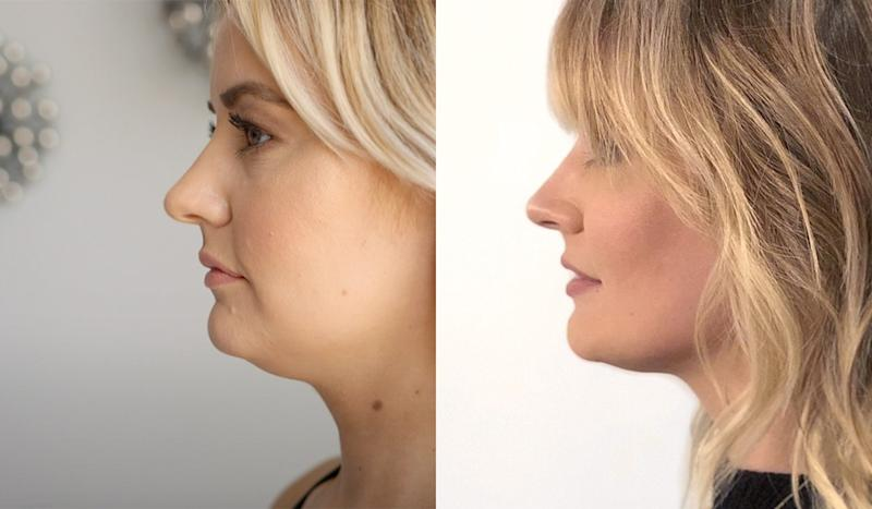 Before Coolsculpting on my chin; after one session of Coolsculpting