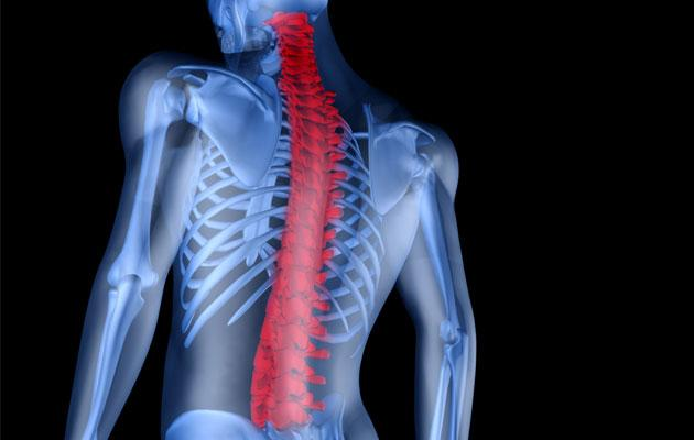Ankylosing spondylitis can affect males and females as young as 20 years old. (Thinkstock photo)