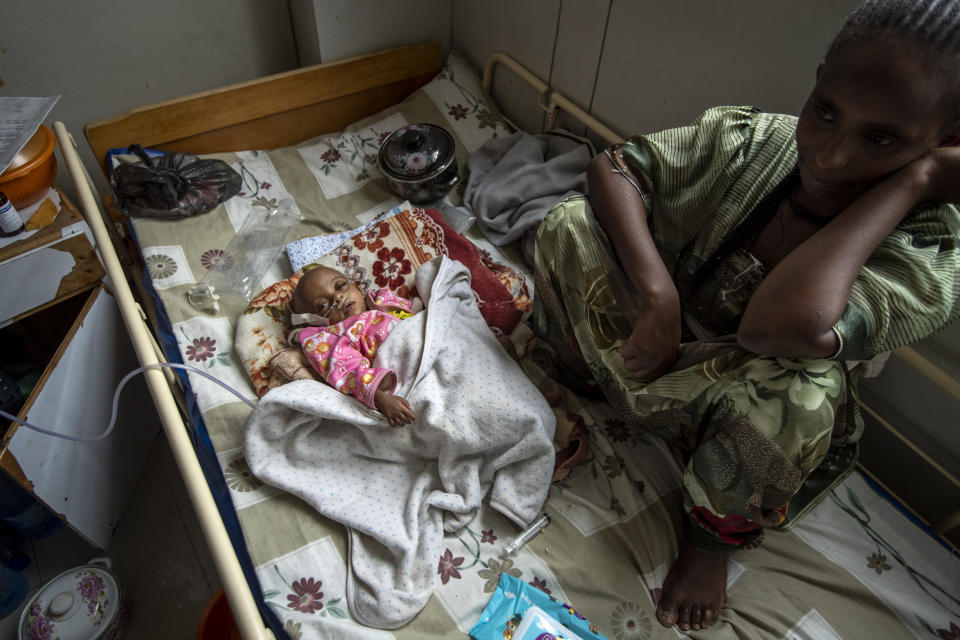 Birhan Etsana, 27, from Dengelat, sits with her malnourished baby, Mebrhit, who at 17 months old weighs just 5.2 kilograms (11 pounds and 7 ounces), at the Ayder Referral Hospital in Mekele, in the Tigray region of northern Ethiopia, on Monday, May 10, 2021. The lone survivor of her triplets, the infant was admitted with complications stemming from severe acute malnutrition, including heart failure. (AP Photo/Ben Curtis)
