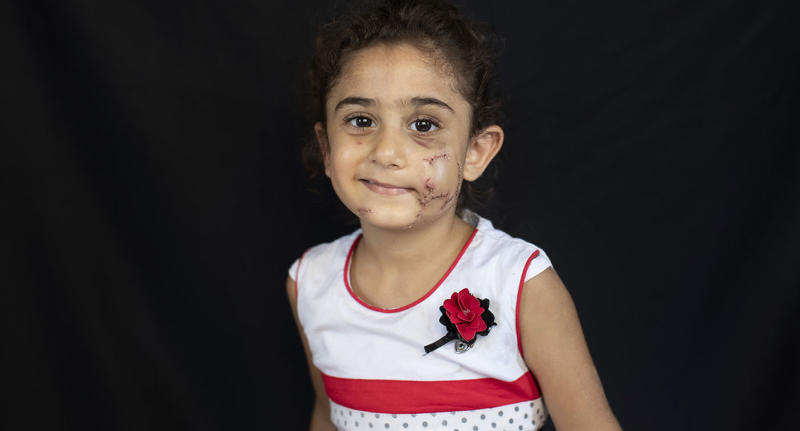 Yara Saeid, 4, who got injured at her parents' apartment during the Aug. 4 explosion that killed more than 170 people, injured thousands and caused widespread destruction, poses for a photograph in Beirut, Lebanon, Thursday, Aug. 13, 2020. (AP Photo/Hassan Ammar)