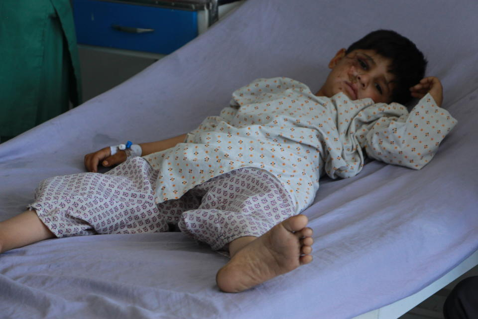 An Afghan boy is treated at a hospital after being injured during fighting between Taliban and Afghan security forces in Kunduz city, north of Kabul, Afghanistan, Thursday, June 24, 2021. Taliban gains in north Afghanistan, the traditional stronghold of the country's minority ethnic groups who drove the insurgent force from power nearly 20 years ago, has driven a worried government to resurrect militias whose histories have been characterized by chaos and widespread killing. (AP Photo/Samiullah Quraishi)