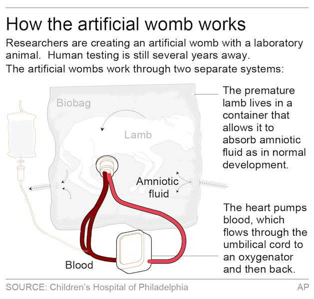 Researchers are creating an artificial womb to improve care for extremely premature babies.