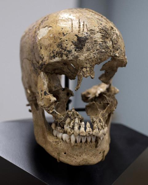 "Strike marks are seen on the skull of  ""Jane of Jamestown"" during a news conference at the Smithsonian's National Museum of Natural History in Washington, Wednesday, May 1, 2013.  Scientists announced during the news conference that they have found the first solid archaeological evidence that some of the earliest American colonists at Jamestown, Va., survived harsh conditions by turning to cannibalism presenting the discovery of the bones of a 14-year-old girl, ""Jane"" that show clear signs that she was cannibalized. (AP Photo/Carolyn Kaster)"