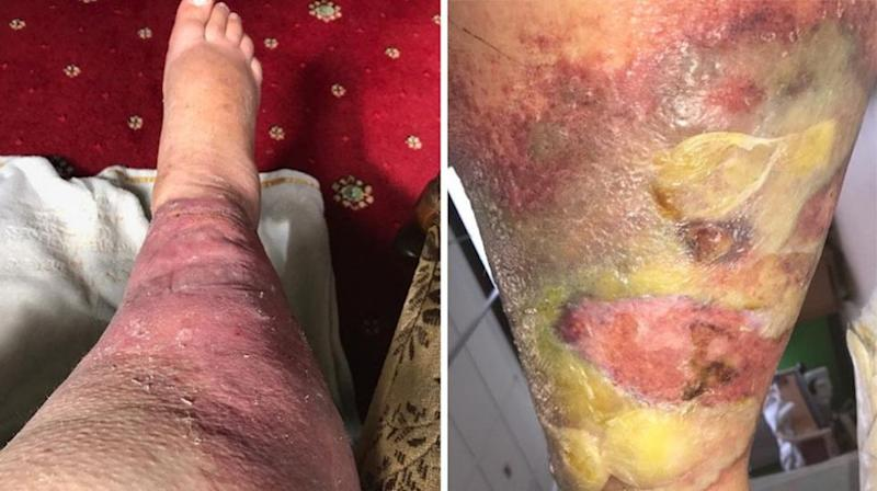 The account executive from Bingley, West Yorkshire, was left with an inflamed red-raw leg covered in pus-filled boils. Source: SWNS