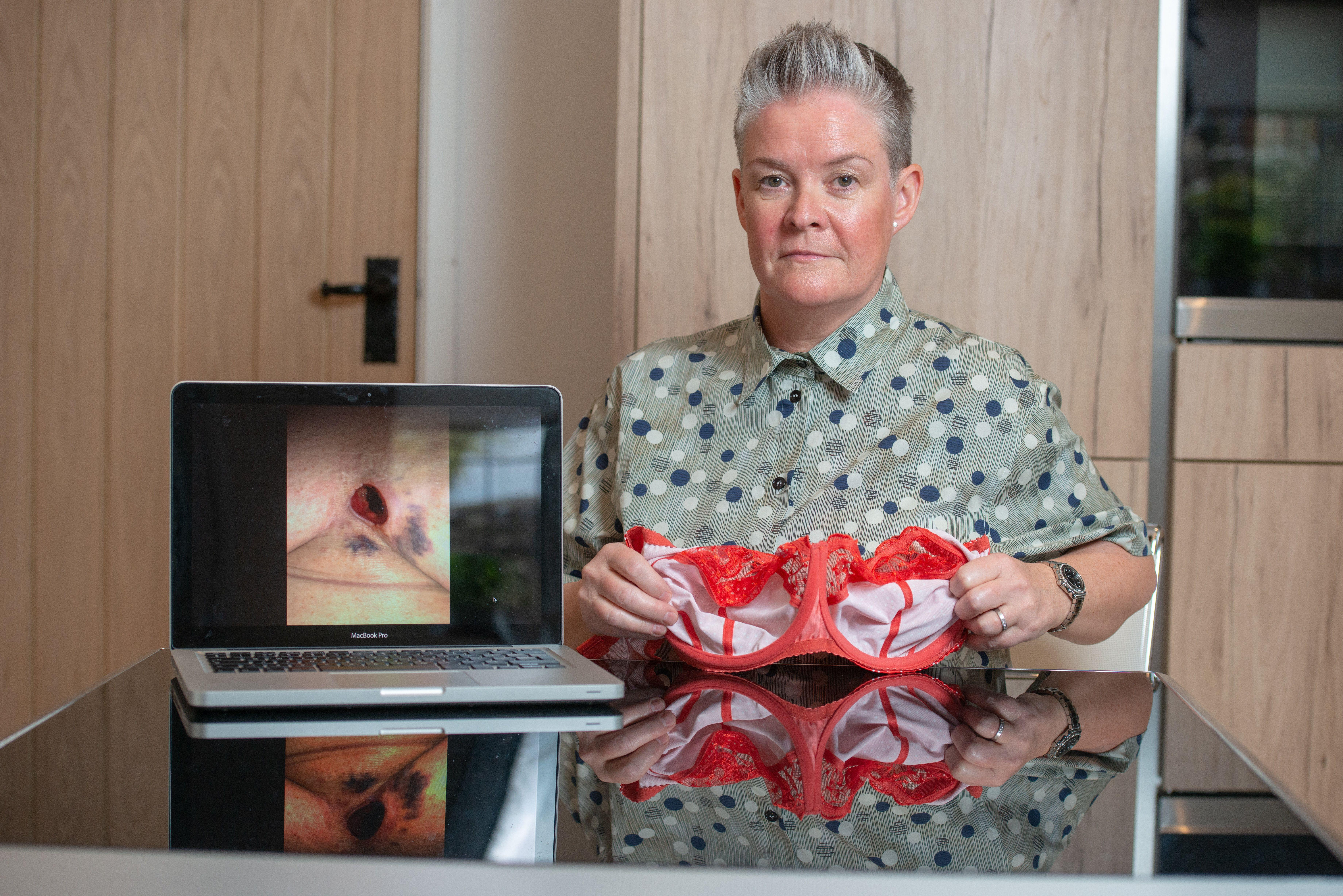 Lynne pictured with one of the bras which caused her wound. [Photo: SWNS]