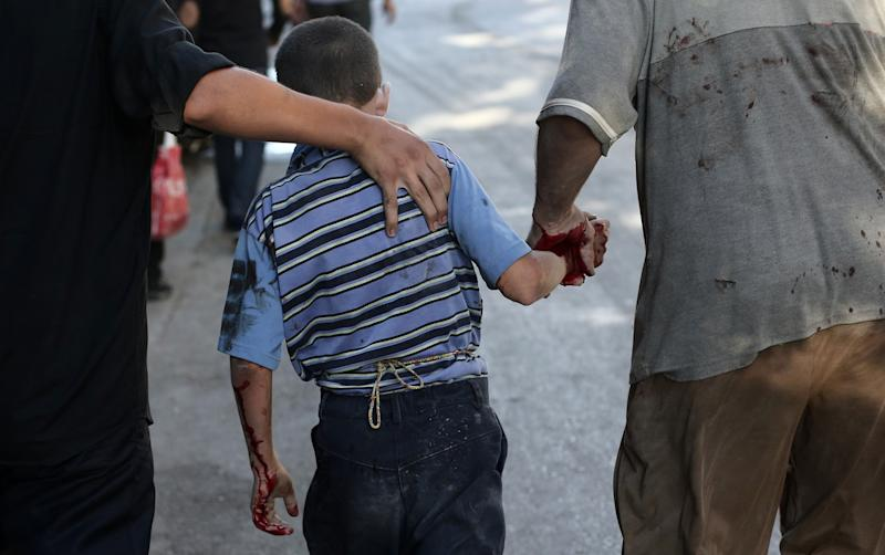 Syrian men walk alongside an injured boy following reported shelling by Syrian government forces in Douma, northeast of Damascus, on August 3, 2014