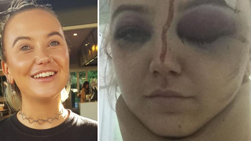Emma Bell suffered serious head injuries after the motorcycle accident. Source: GoFundMe.