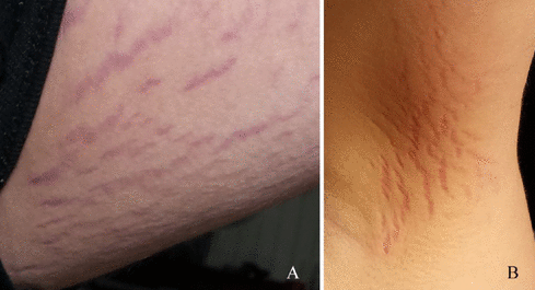 The boy had 'stretch mark-like' lesions, pictured (left) on his thigh and (right) near his right armpit. It was determined a bacterial infection which entered his bloodstream had affect his mental status. Source: Journal of Central Nervous System Disease