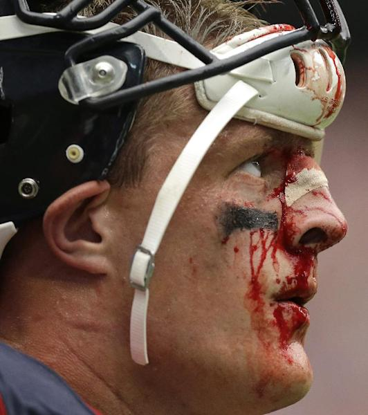 FILE - In this Sunday, Sept. 29, 2013 file photo, a bloodied Houston Texans' J.J. Watt stands on the sideline during the fourth quarter an NFL football game against the Seattle Seahawks in Houston. A violent collision during the game resulted in a deep gash on the bridge of his nose, which required six stitches. The gash kept opening in subsequent games, so now that the season is winding down, Watt tells The Associated Press he'll look into having plastic surgery in the offseason to repair the injury. (AP Photo/Patric Schneider)