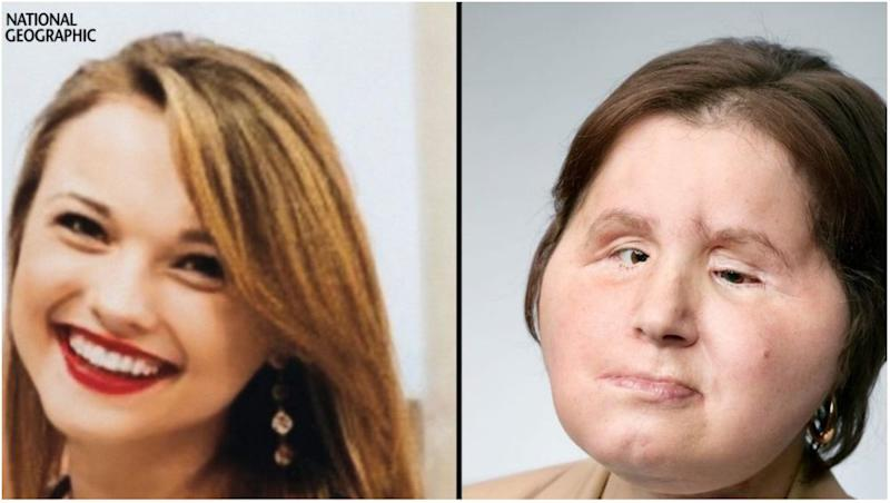 21-Year-Old Girl Becomes Youngest to Receive Face Transplant in the US, After She Shot Herself in An Attempted Suicide (Watch Video)
