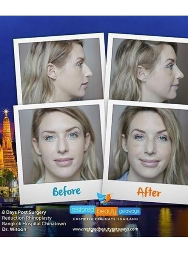 Before and after pics of her nose. Source: Instagram