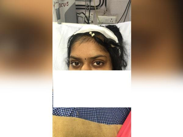 The 24-year-old woman who underwent surgery at AIIMS