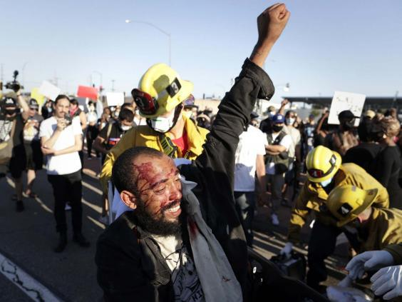 Man helped by fire department following protest in Los Angeles (Arnaud Andrieu / SIPA / REX)