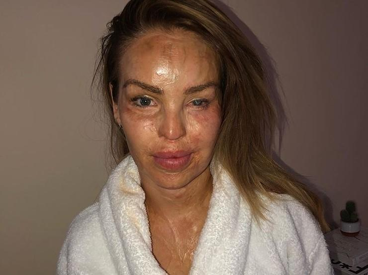 "Katie Piper shares recovery photo after having surgery on her ""bad eye"" (Katie Piper/Instagram)"