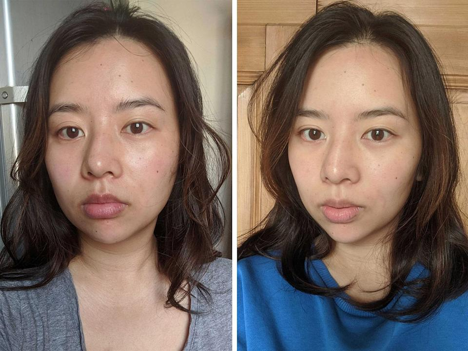 Left: My face before using the Foreo Bear. Right: One week after using the Foreo Bear daily.