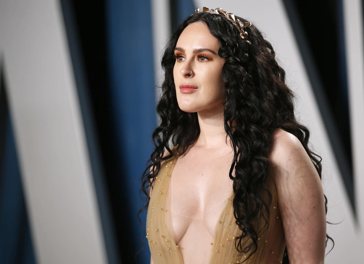 Rumer Willis wrote on Instagram that she experienced a recent bout of anxiety. (Photo: REUTERS/Danny Moloshok)