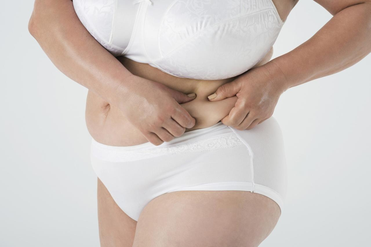 <p>Folds under and around the stomach area are warm and moist and more likely to have a higher buildup of bacteria, says Dr. Kellett, so it's important to wash away the bacteria and sweat that gathers in the folds. <em>(Photo: Getty)</em> </p>