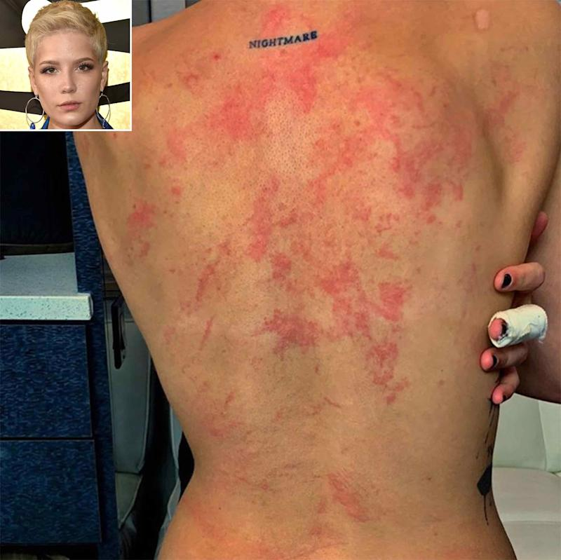 Halsey Shows Off Her Injured Back and Warns: 'Don't Go Rock