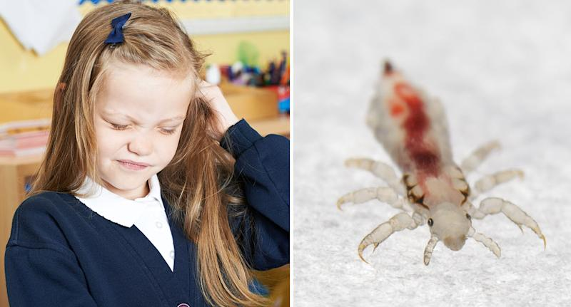 Nits: Head lice are a common problem when children go back to school. [Photo: Getty]